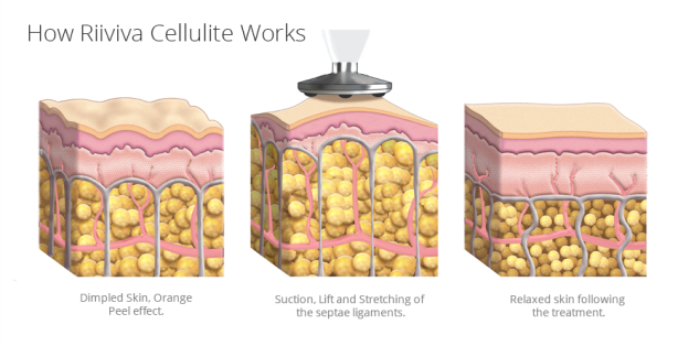 riiviva cellulite illustrations